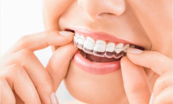 invisalign, orthodontics, clear trays, Sugar Land Braces, Kim Gee